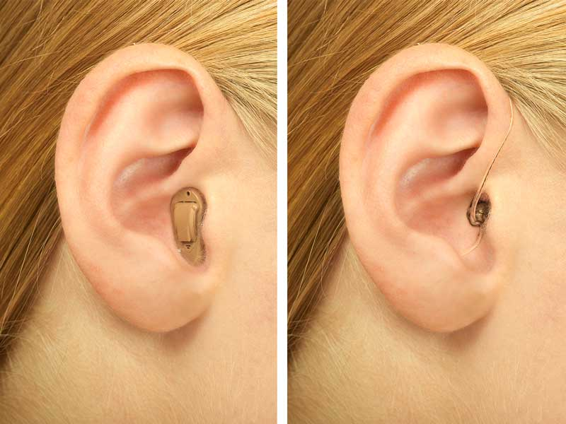 Soll es ein Im-Ohr-Hörgerät (IdO Hörgerät) sein oder eher ein Hörgerät (HdO Hörgerät), das hinter dem Ohr getragen wird? Bei der Hörgeräte Anpassung auf Probe kann man beide Varianten individuell ausprobieren.