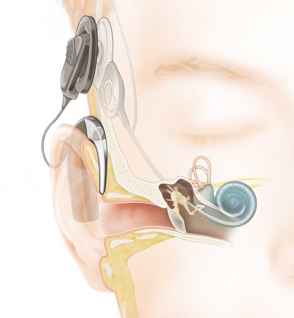Ein Cochlea Implantat wird dann empfohlen, wenn über das Hörimplantat ein besseres Hören als mit konventionellem Hörgerät erzielt werden kann. Illustration: Copyright Cochlear Limited